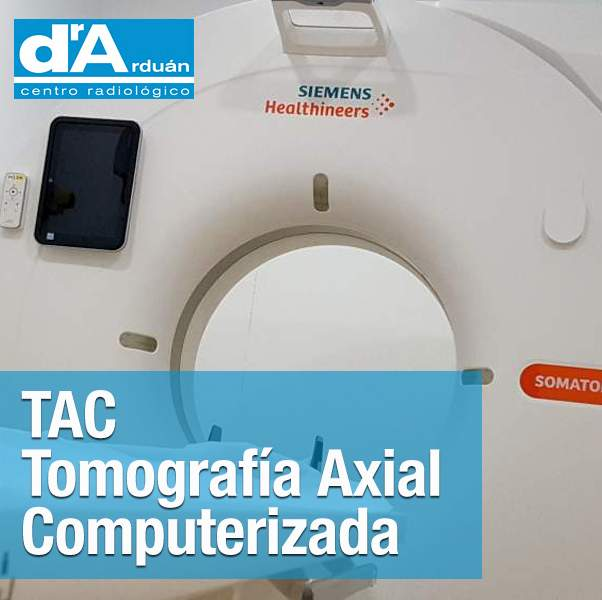 TAC – Tomografía Axial Computerizada
